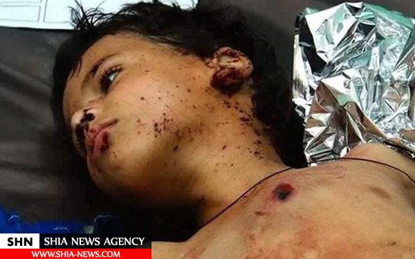 تصاویر جنایت باورن ی عربستان سعودی