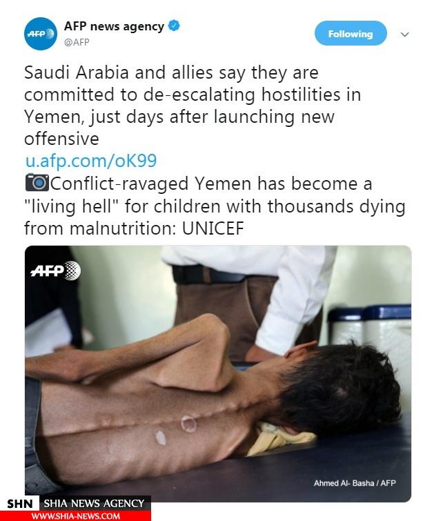 عکس تکاندهنده خبرگزاری فرانسه از یک کودک یمنی