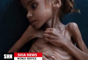 آمار وحشتناک سازمان ملل از محرومان یمنی